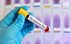 Mycoplasma Contamination: The Problem and Prevention for Grant-Funded Research